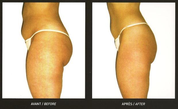 before after cellulit massages