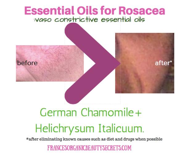 essential-oils-for-rosacea